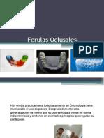 Ferulas Oclusales