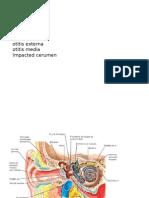 otitis media, externa, impacted cerumen.pptx