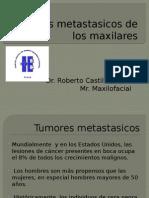 Tumores Metastasicos de Los Maxilares