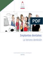 Implantes Dentales La tercera denticion