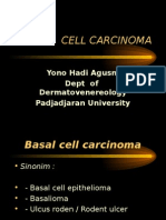 Basal Cell Carcinoma.ppt
