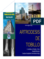 Artrodesis Tobillo Dra Castellano 2009