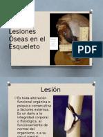Lesiones Óseas en El Esqueleto. Equipo 3