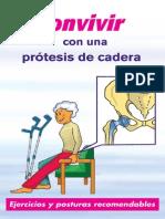 Convivir Con Protesis Calidad