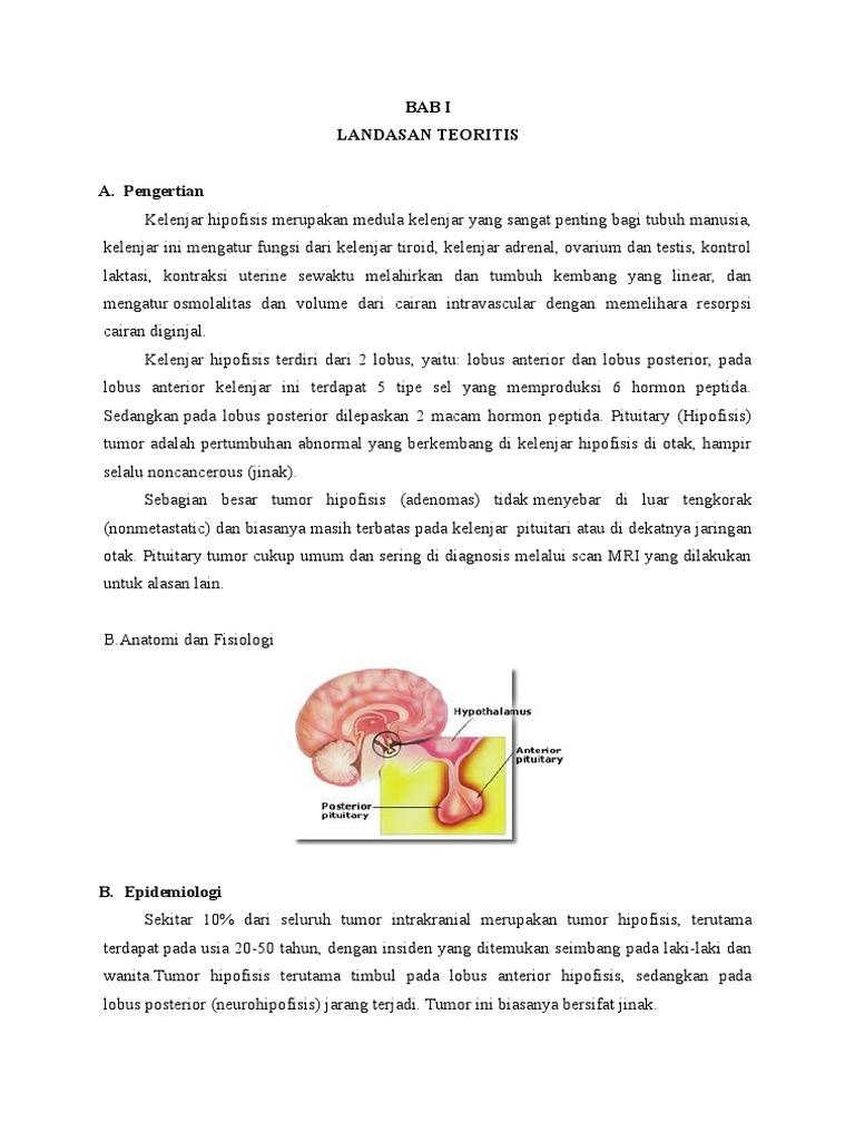 askep adenoma hipofisis)