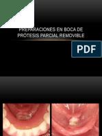 Preparaciones en Boca de Prótesis Parcial Removible