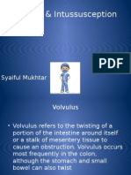 Volvulus & Intussuseption