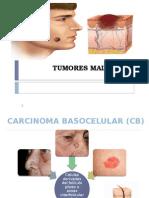 Tumores Malignos presentacion