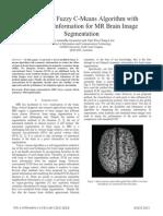 A Modified Fuzzy C-Means Algorithm with symmetry information for MR brain segmentation.pdf