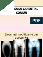 Pediatrie Medicina dentara Curs 4 - Rahitism Constanta