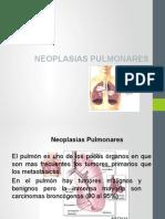 Neo Pulmón