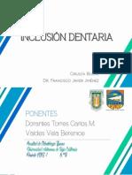 Inclusión Dentaria  Cirugia Bucal
