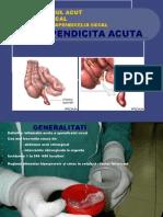1.Apendicita-acuta.ppt