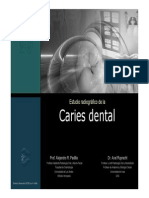 Caries Dental Diagnostico