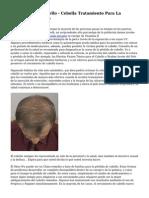 La P?rdida De Cabello - Cebolla Tratamiento Para La P?rdida De Cabello