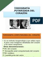 Tomografía Computarizada Del Corazón