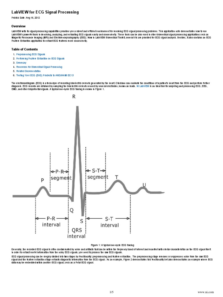 NI-LabVIEW for ECG Signal Processing | Electrocardiography