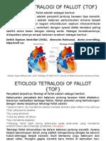 Tetralogi of Fallot {Tof}