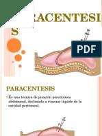 paracentesis.ppt