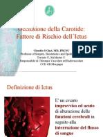 Occlusione Della Carotide - Fattore Di Rischio Dell'Ictus