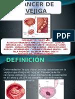 Cancer de Vejiga Presentacion Diapositivas URO