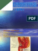 Benign prostat hipertropi