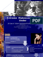 An Extreme Makeover Down Under- Case Report on Vulvar Carcinoma