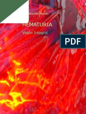 obstrucción urinaria resección de próstata turin laser green screen