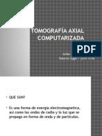 Tomografia Axial Computarizada