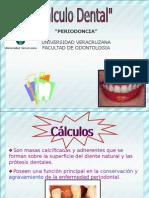 3.- Calculo Dental