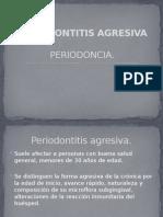 10.-Periodontitits agresiva