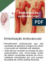 Embolização endovascular.pptx