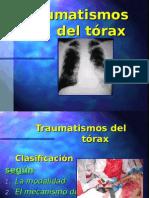 Traumatismos Del Torax