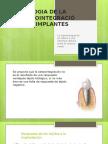 Biologia de La Osteointegración de Implantes