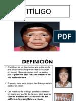 Vitiligo Ppt