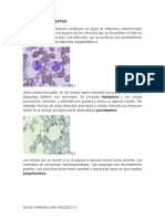 Anemia Megaloblastica