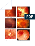 Labelled Fundus Pictures