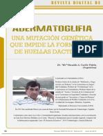 Adermatoglifia - Una Mutación Genética Que Impide La Formación de Huellas Dactilares