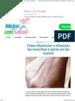 Cómo Disimular o Eliminar Las Manchas y Pecas en Las Manos - Mejor Con Salud