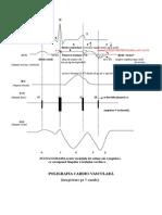 10 Poligrafia Cardio Vasculara Grafic