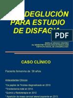 Caso Clinico Cinedeglucion
