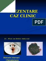 Caz Clinic HDS Varice