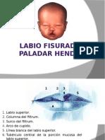LABIOFISURADOYPALADARHENDIDOo