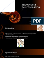 0. Hipoacusia Neurosensorial