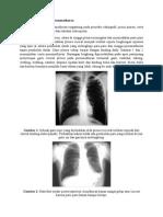 Tanda Radiografi Pada Pneumothorax
