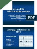 Lire un ECG