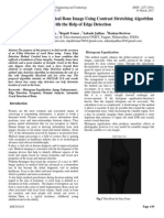 Crack Detection of Medical Bone Image Using Contrast Stretching Algorithm with the Help of Edge Detection