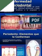 ExpoEnfermedad Periodontal