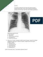 Soal Radiologi 22 Maret 2014