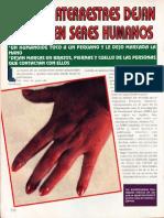 Extraterrestres - Los Extraterrestres Dejan Marcas en Seres Humanos R-080 Nº021 - Reporte Ovni